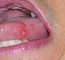 だ 口内炎 噛ん 舌